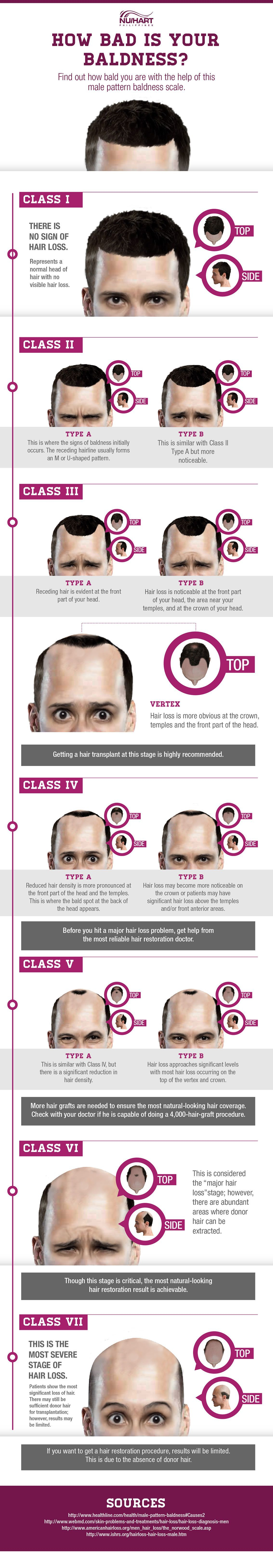 Male pattern baldness NW  Man Stuff  Pinterest  Bald man and