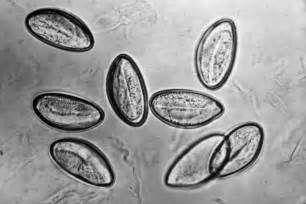 Pesquisa Como matar toxoplasma gondii. Vistas 25628.