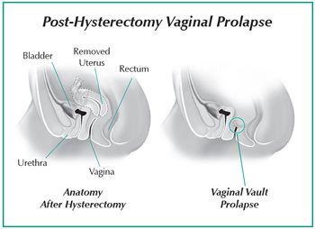 Pdf pectopexy to repair vaginal vault prolapse