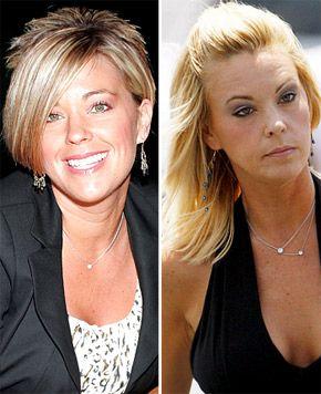 Celebrity Plastic Surgery Disasters? - CBS News
