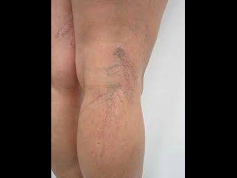 Veja como se livrar das varizes nas pernas com uma simples receita caseira - YouTube