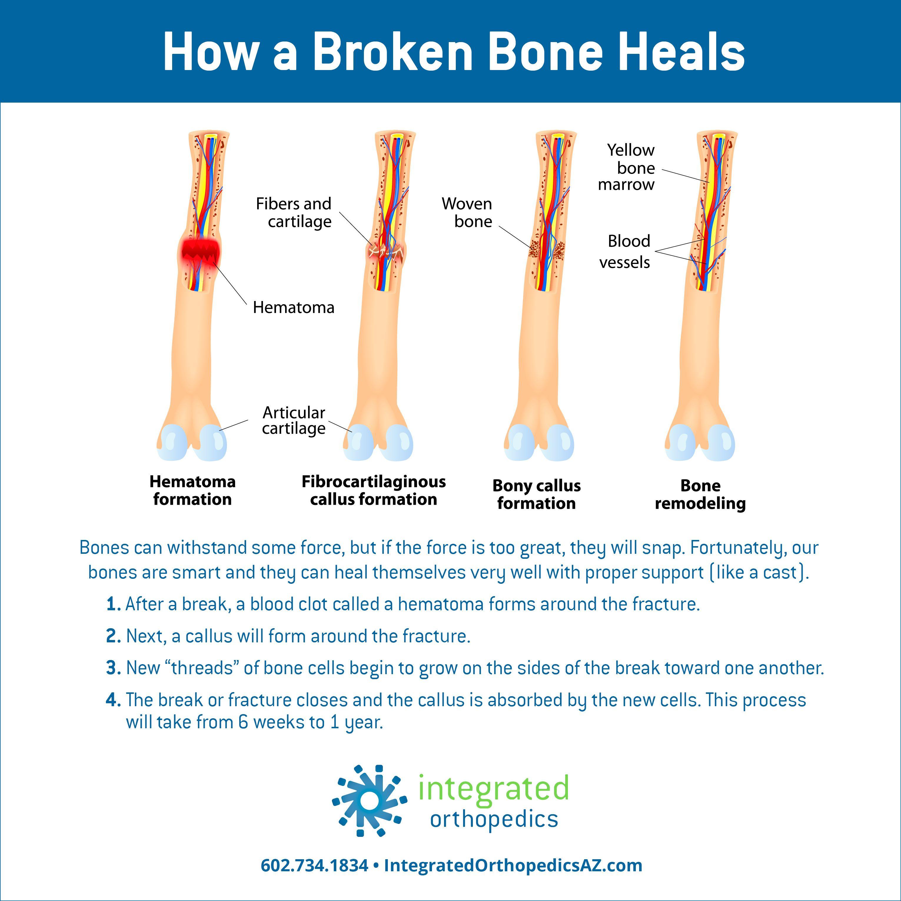 How A Broken Bone Heals Broken Bone Broken Ankle Recovery Bone Healing