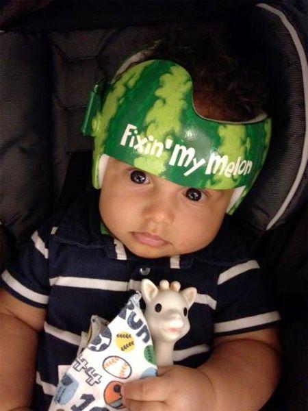 Cranial Helmet Decals Google Search Baby Boy Clothes - Baby helmet decals