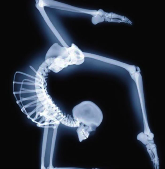 X-ray Yoga Scorpion Pose