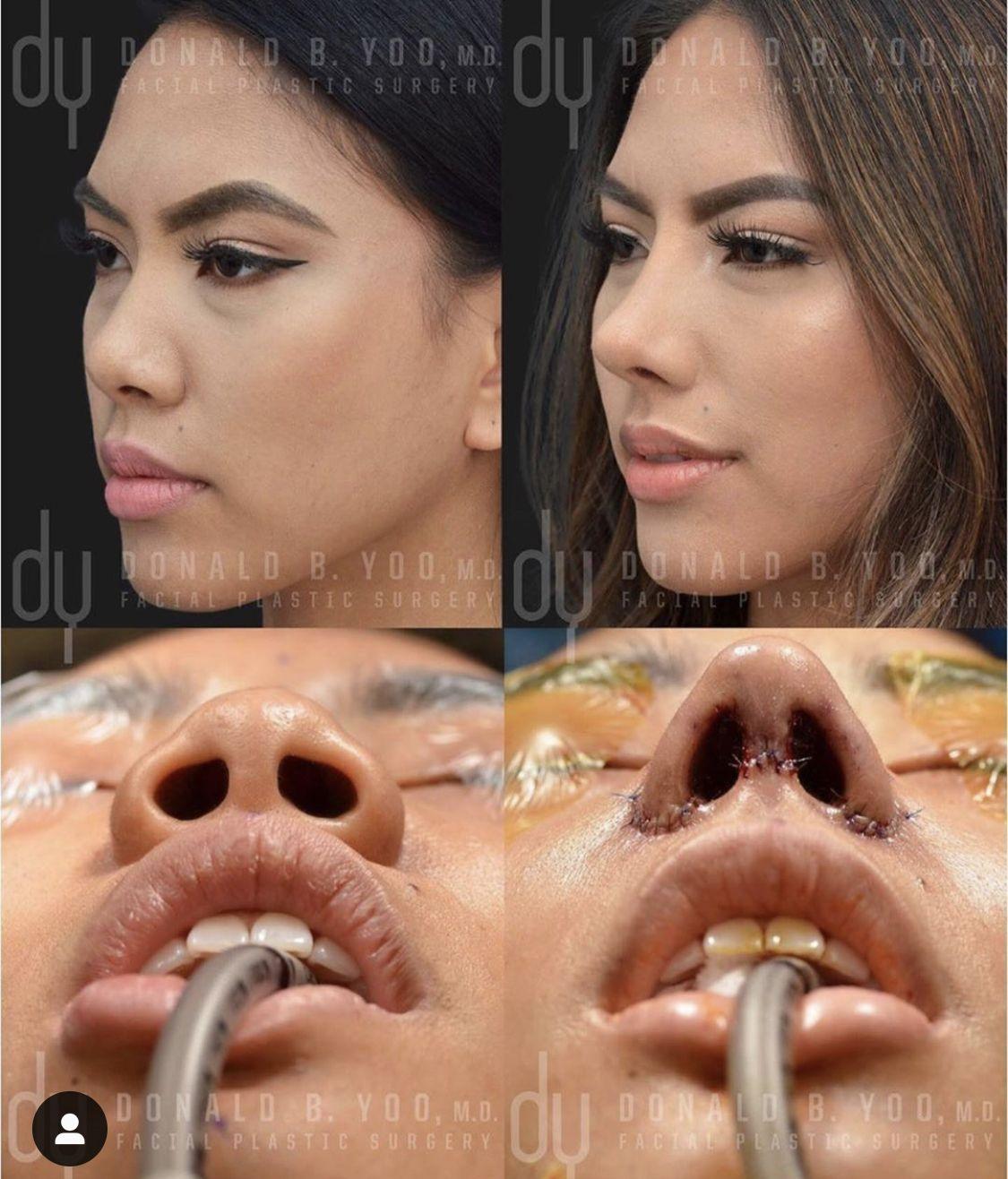 Pin by Mixcelene.g Mixcelene on Nose in 2020 Rhinoplasty