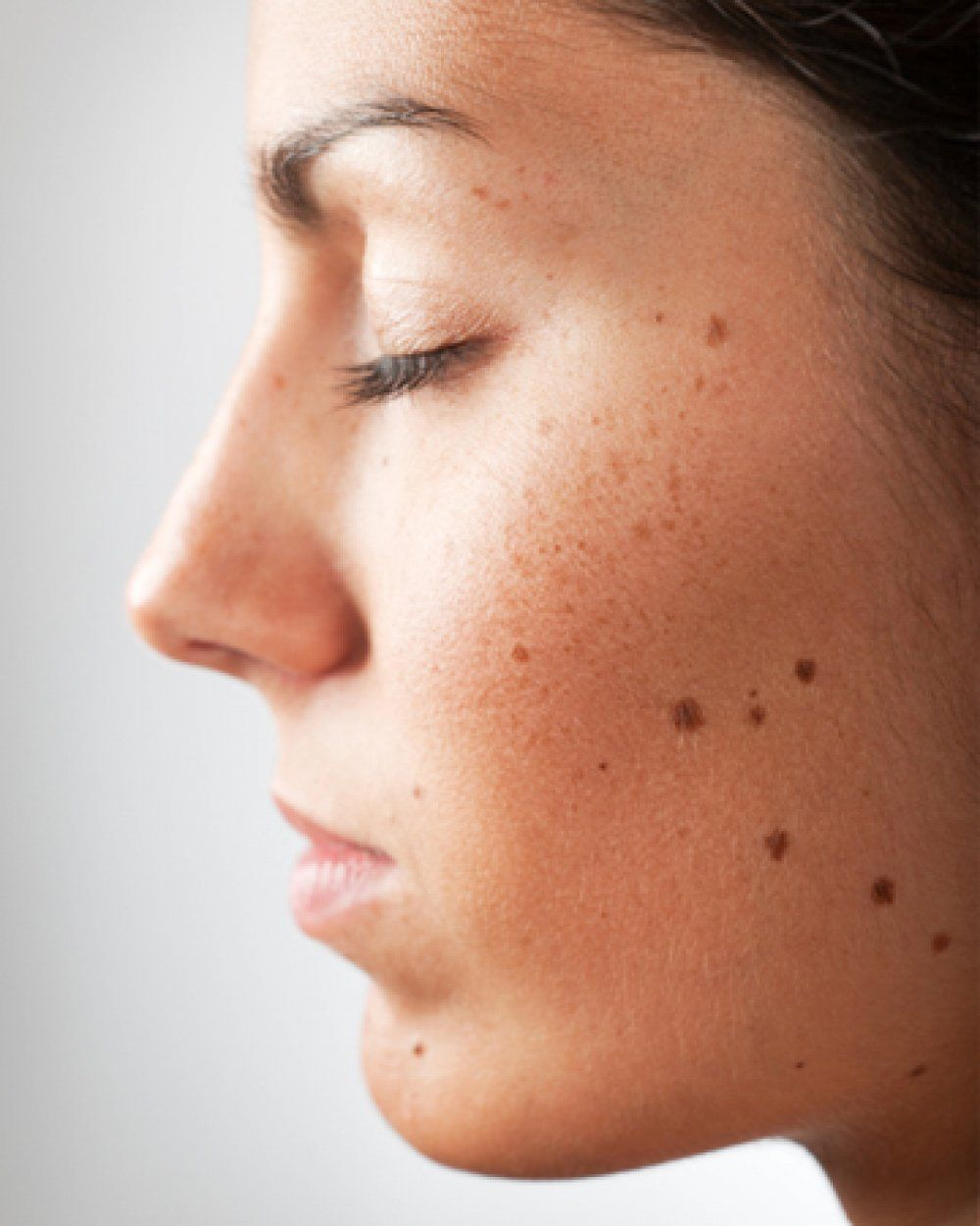 Procedure removal facial mole