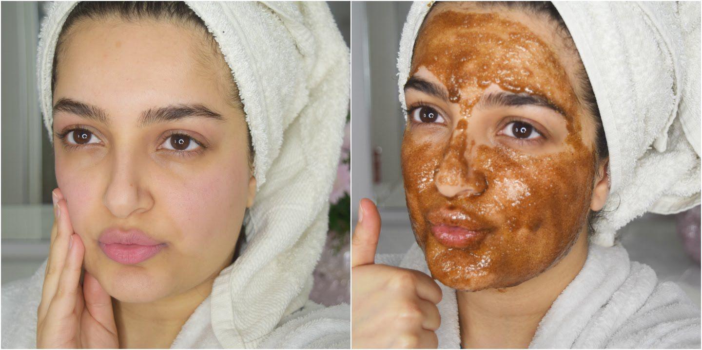 Best diy face mask lip scrub for skin lightening acne