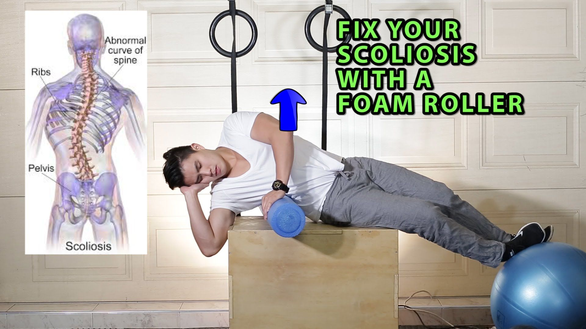 Fix Your Scoliosis with a Foam Roller (Scroth's Method