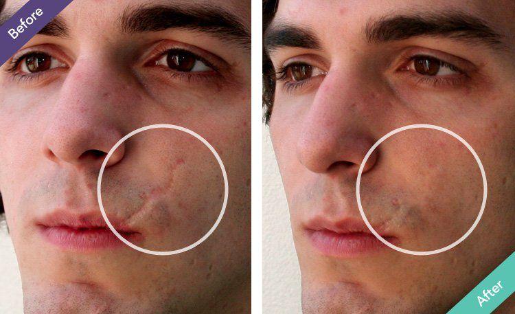 Scar Wrinkle Filler Beauty Scar Treatment Acne Scars Acne