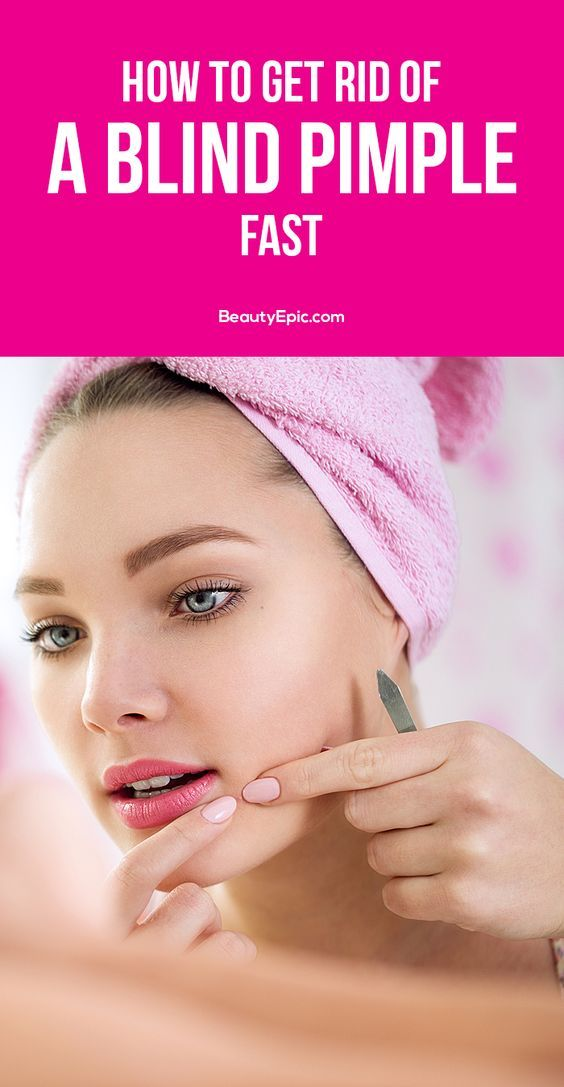 How to Get Rid of Blind Pimple: There are various remedies available to get relief from the pain, inflammation and irritation