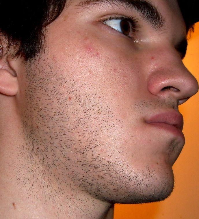 Estrogen facial hair, xhamster spanish petite