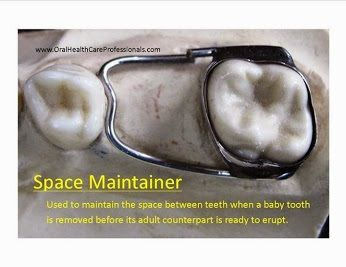 A space maintainer is a device cemented to one tooth with an arm that spans a space and contacts a tooth on the other side of the span. It is typically used when a baby tooth is removed/extracted before its adult counterpart is ready to erupt. Space maintainers are typically only used for the posterior teeth. They are essential to prevent drifting and crowding of the teeth. This undesirable tooth movement may require complicated orthodontics to correct. #baby #tooth #spacer