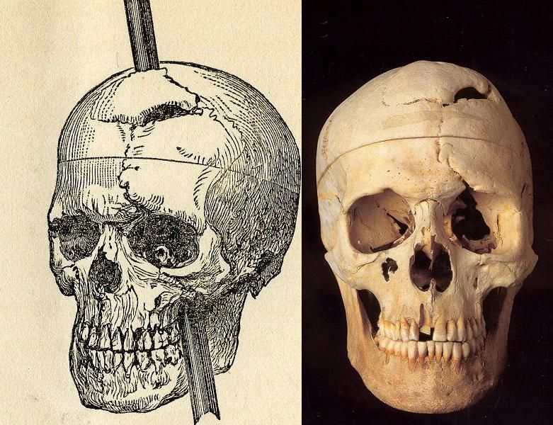 The skull of Phineas Gage, at Warren Anatomical Museum at Harvard  University.