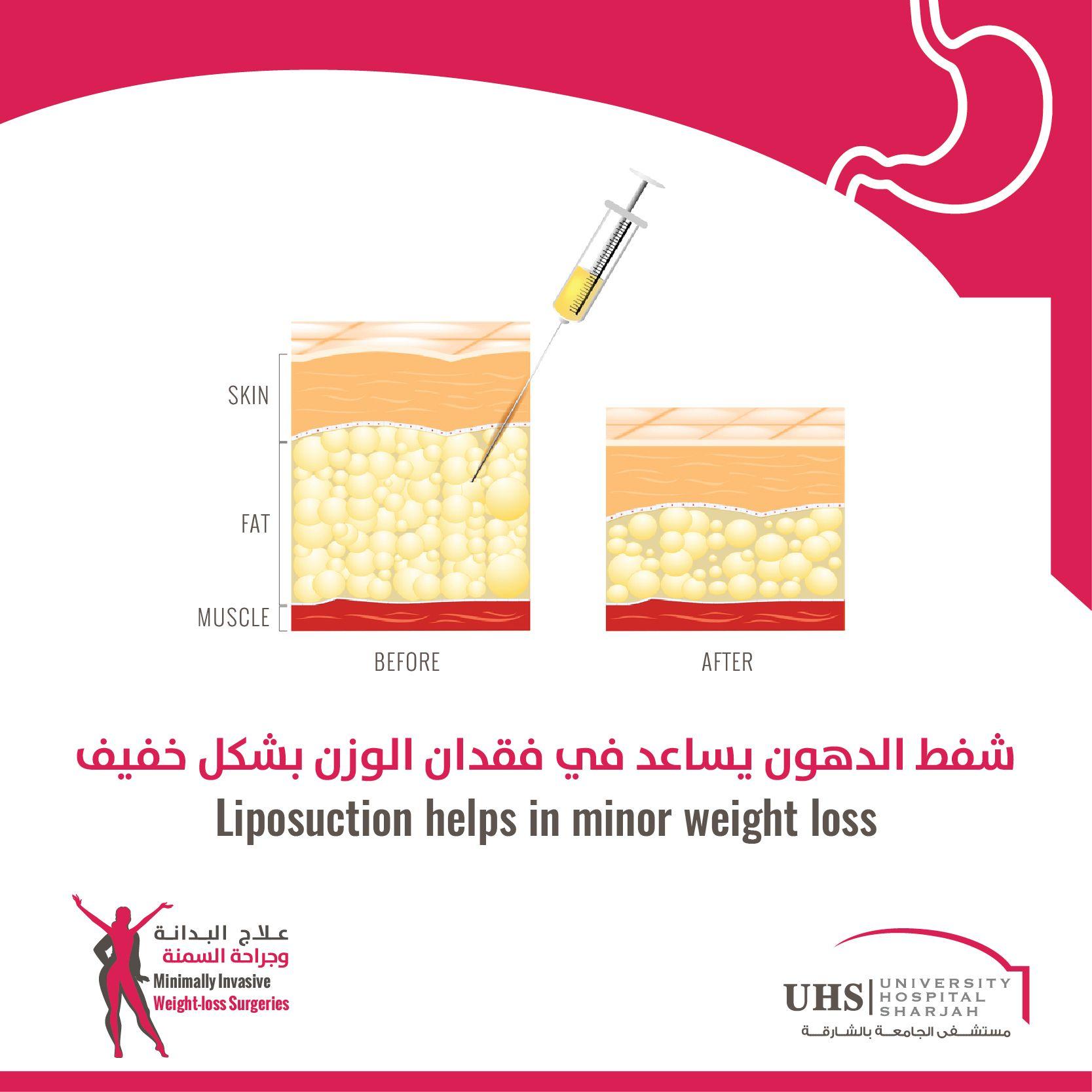 Pin On August Awareness Weight Loss Surgeries