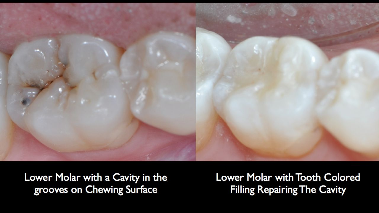 Tooth Colored Fillings Can Be Used On Either Front Or Back Teeth They Are A Good Choice For People Who Prefer Tooth Colored Fillings Cosmetic Dentistry Dental