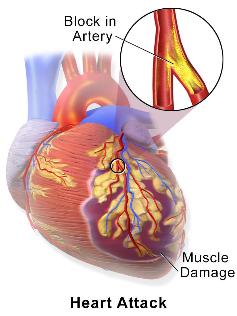 diagrams: damaged heart muscles diagram | nice post | pinterest, Muscles