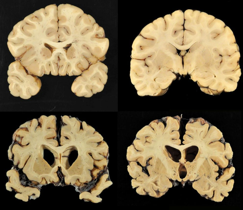 Former Nfl Player Confirmed As 1st Diagnosis Of Cte In Living