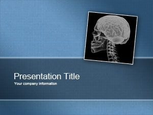 free slide schizophrenia powerpoint template is a free powerpoint, Presentation templates