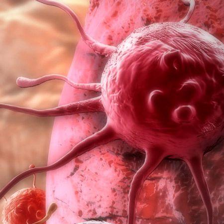 Oliiviöljyn ainesosa tappaa syöpäsoluja!
