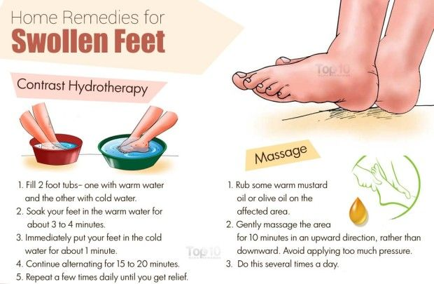 ed6d9f0d0d5052348cff4b22499d8ed8 - How To Get Rid Of Swollen Toes In Winter
