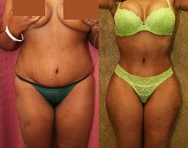 5536e73948 Liposuction vs Tummy Tuck In Mexico