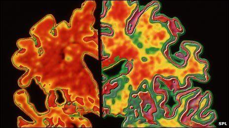 Alzheimer's found decades earlier | Alzheimer's Research ...