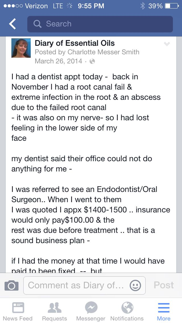Story Of Abscess Tooth Essential Oils Saved Me Thousands And From