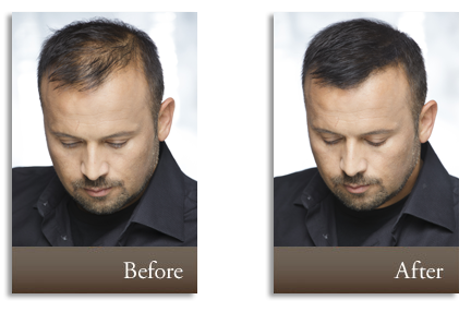 regain your confidence with a full head of hair with toppik hair