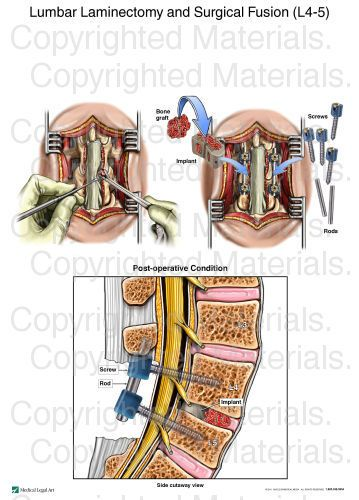 Lumbar Laminectomy and Surgical Fusion (L4-5)   Back surgery ...