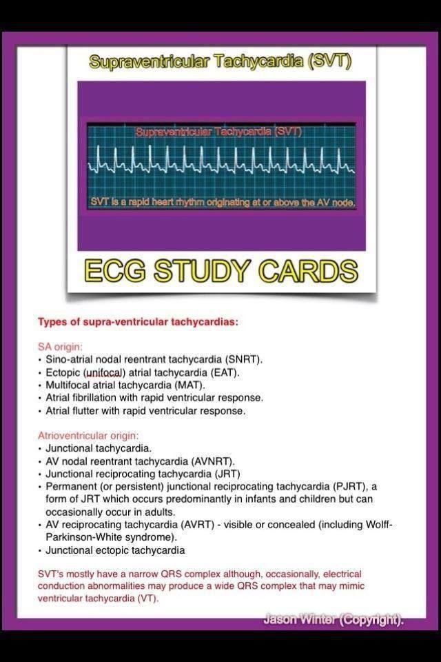 ECG Supraventricular Tachycardia SVT This Is What I