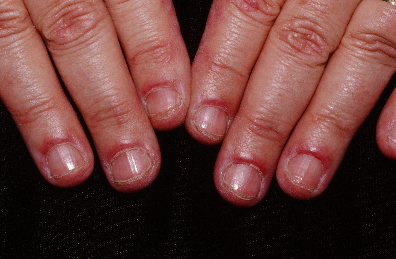 Dermatomyositis Hands
