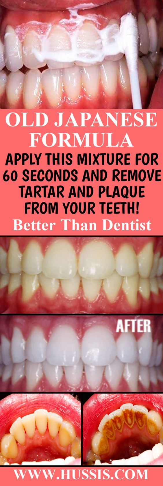 Old Japanese Formula Apply This Mixture For 60 Seconds And Remove Tartar And Plaque From Your Teeth Better Than Dentist Teeth Health Dental Health Nice Teeth