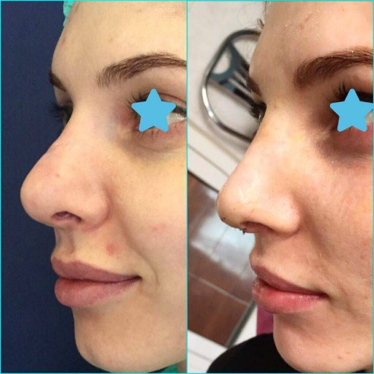 Bulbous tip before and after photos nose reshaping