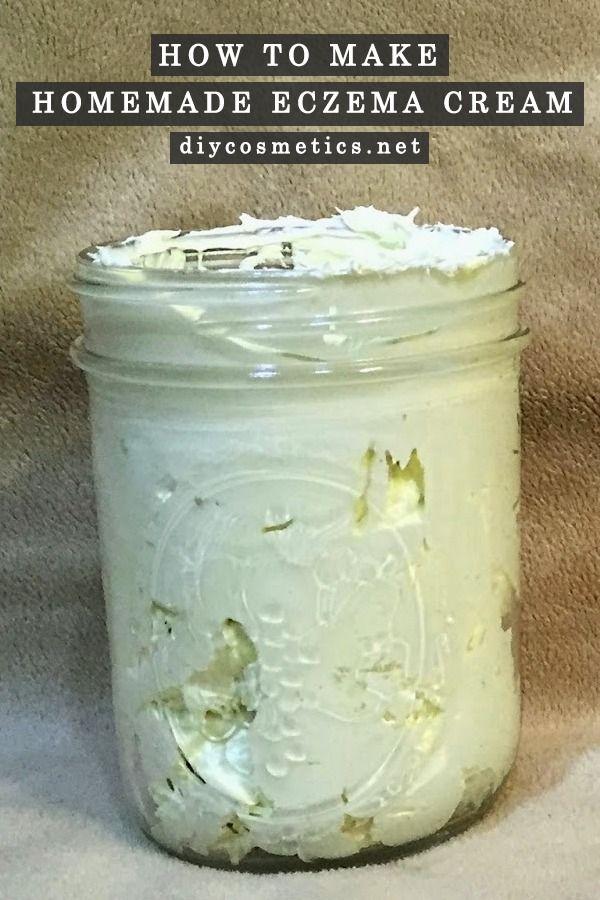 How to Make Homemade Eczema Cream?