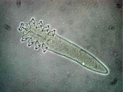 How To Kill Demodex Mites From The Human Body Demodex Rosacea
