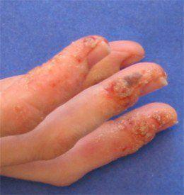 How I Treated My Pompholyx Eczema (Dyshidrotic Dermatitis