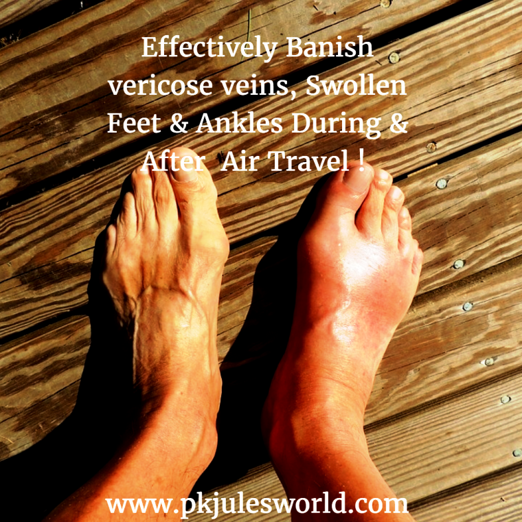 how to get rid of swollen feet from flying
