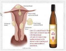 Castor Oil For Fibroids    Health: Remedies   Uterine