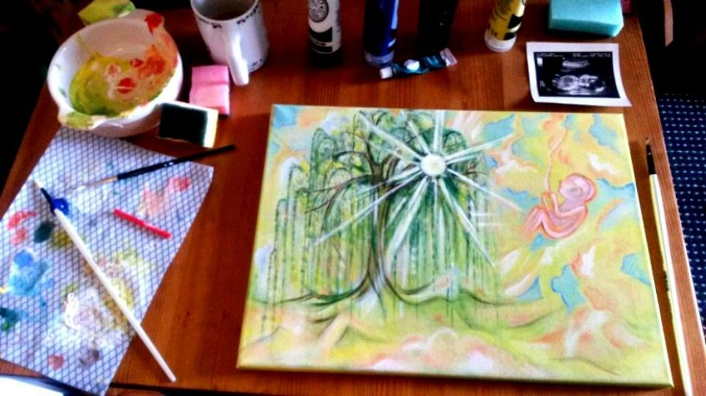 Ultrasound paintings by elizabeth pretty cool idea for a baby ultrasound paintings by elizabeth pretty cool idea for a baby shower gift negle Gallery