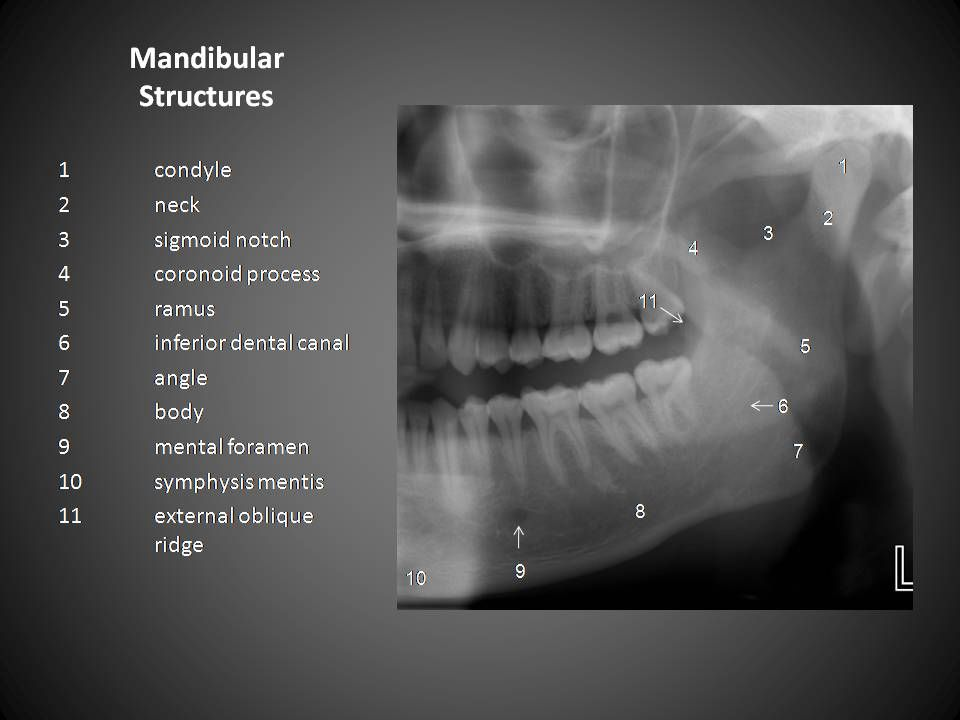 Mandibular Structures Radiographic Anatomy Pinterest