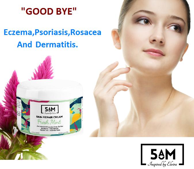 Causes Of Psoriasis Rosacea, Psoriasis cream, Skin cream