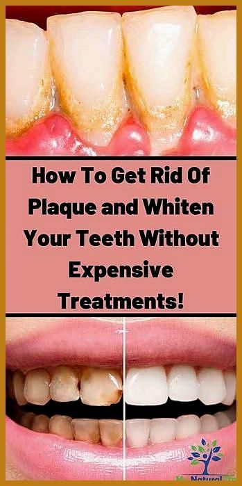 Home Remedies To Whiten Your Teeth Instantly Teeth Whitening Remedy Teeth Whitening At Home teethwhiteningnatural howtowhitenyourteeth Home Rem Home Remedies To Whiten Yo...