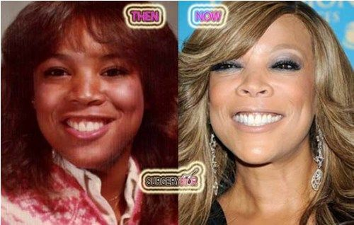 Wendy Williams Nose Job | Wendy William's | Pinterest | Nose jobs