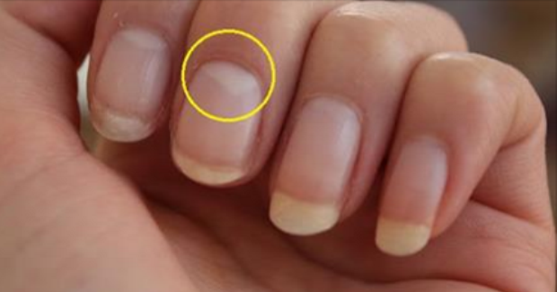 The White Half Moon On Your Nail Is Called Lunula And Is A Very Important Part Of Our Body It Is Extremely Sensi Nail Bed Damage Nail Problems White Nail Beds