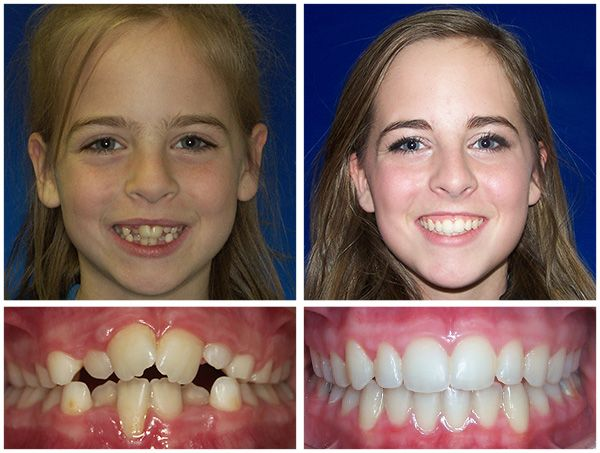 There is no transformation that the braces can't achieve ...