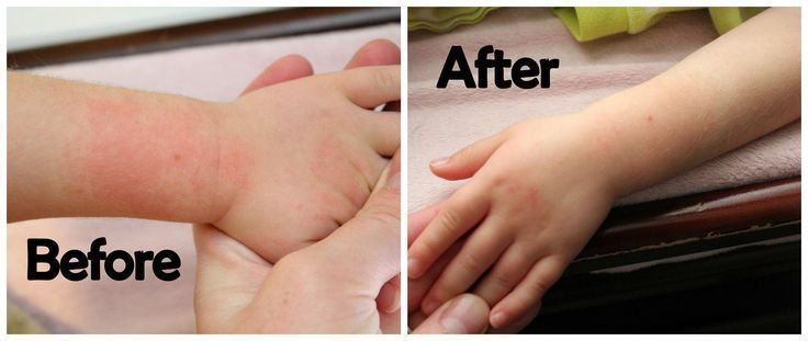 Natural remedies to help cure rashes and eczema on babies and young children #ec #babyrashestreatment Natural remedies to help cure rashes and eczema on babies and young children #ec #babyrashestreatment Natural remedies to help cure rashes and eczema on babies and young children #ec #babyrashestreatment Natural remedies to help cure rashes and eczema on babies and young children #ec #babyrashestreatment