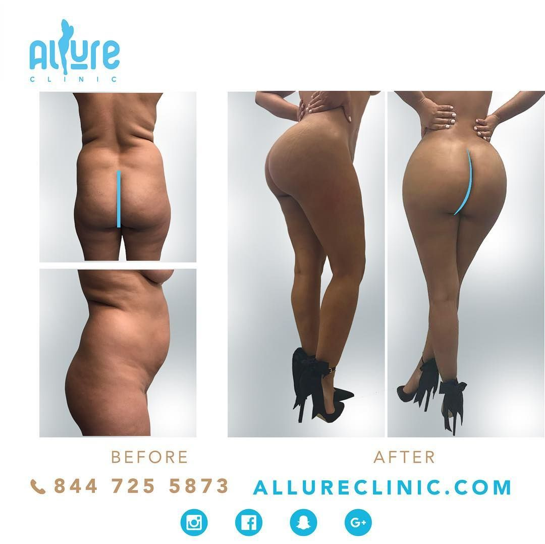 LIPOSUCTION 360 and BBL This is the epitome of