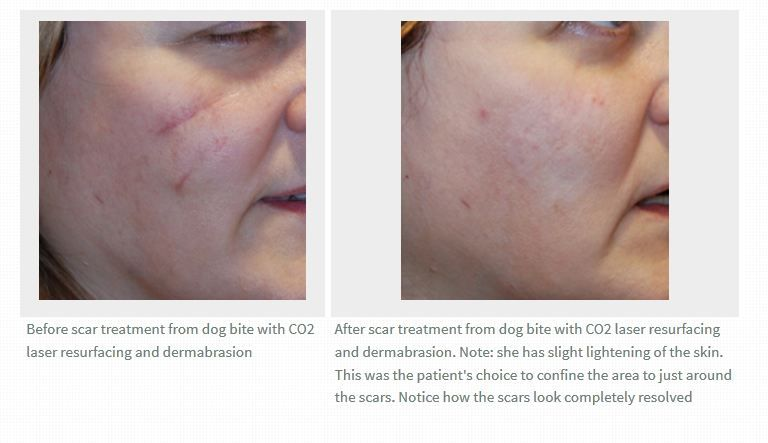 This a before and after photo picture image digital of a this a before and after photo picture image digital of a laser scar sciox Choice Image