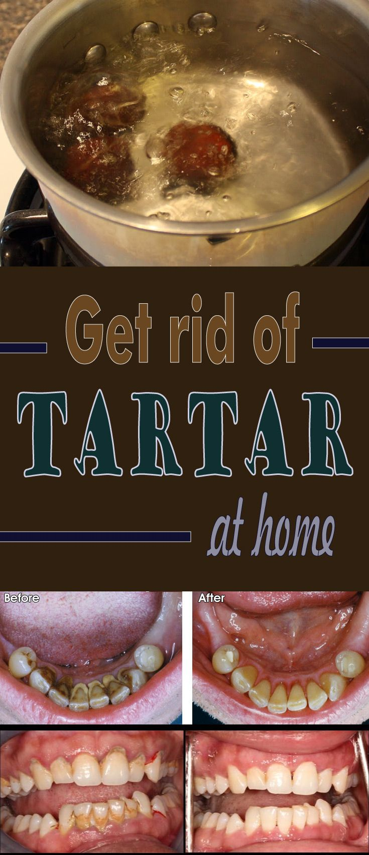 Get rid of tartar at home oral care dental health care