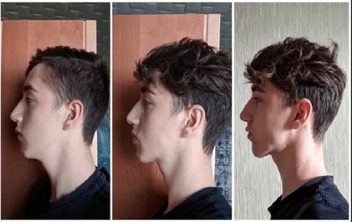 Jawline exercises good How to